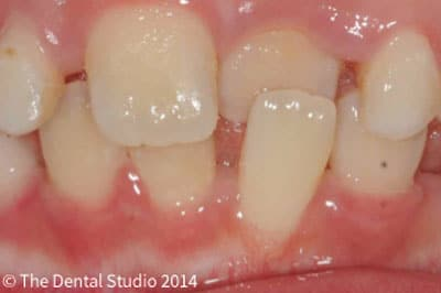 children crooked teeth treatment