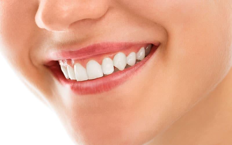 gum surgery at The Dental Studio