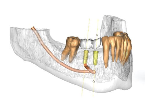 interactive 3D implant planning