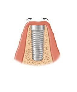 implant screw placement