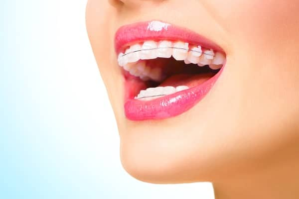 braces ceremic metal singapore dentist