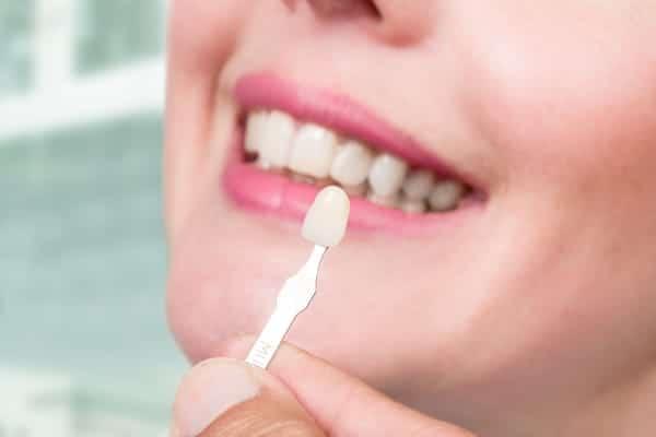 veneer singapore dentist