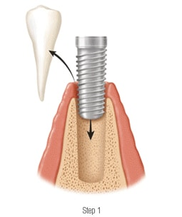 preparation for tooth implants