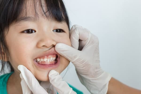 toddler dental check