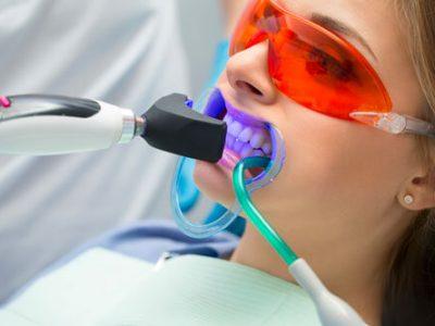 Chairside Teeth Whitening