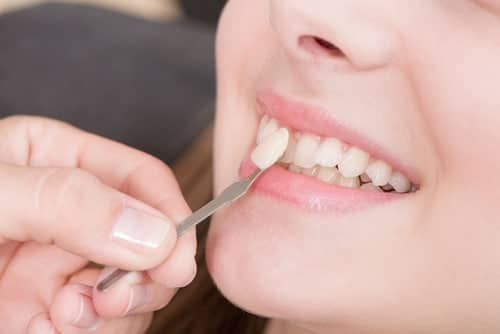 Placing Veneers for Straightening Teeth