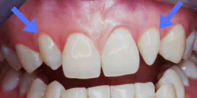 Oddly Shaped Front Teeth Which Can Be Easily Corrected