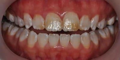Severe Internal Staining of Teeth