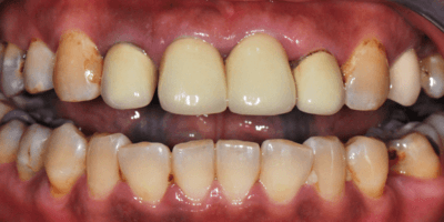 Stained Old Crowns on Teeth