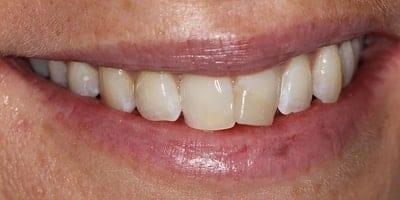 Slightly Crooked Teeth Needs Straightening
