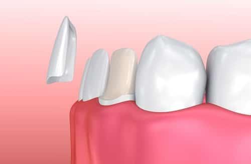 Illustration of Placing Veneers on Teeth