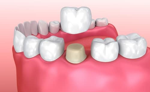 All You Need To Know About Teeth Extractions The Dental Studio