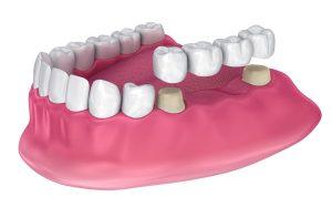 Bridge natural teeth