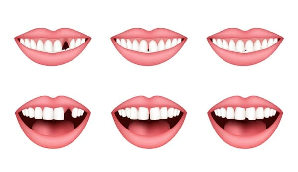 different teeth conditions