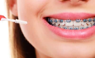 metal braces for teeth straightening