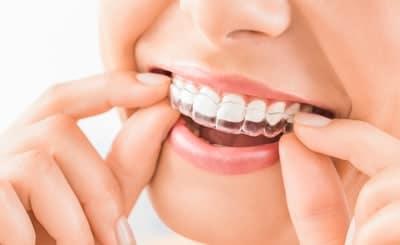 invisalign for teeth straightening