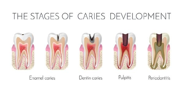Stages of tooth infection decay