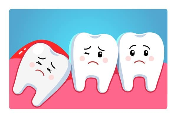 Impacted Wisdom Teeth Extractions