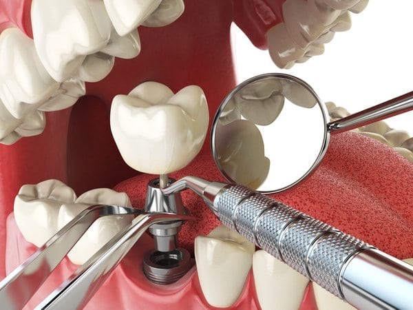 Time Needed for Dental Implants to Heal
