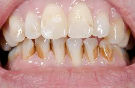 Extrinsic stained teeth