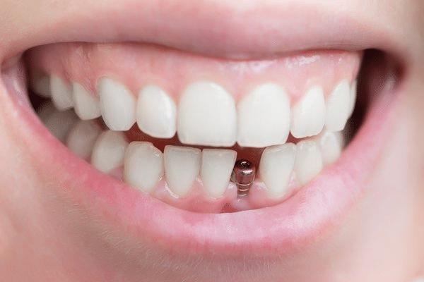 Screw on Teeth For Dental Implant