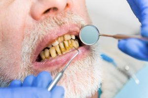 Stained Teeth due to Heavy Smoking