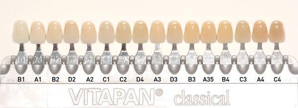 Teeth Colour Shade Guide