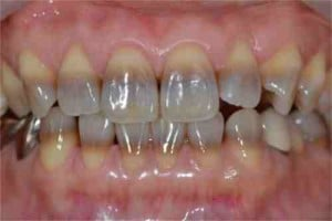 Stained teeth - Tetracycline