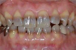 Stained teeth - Tetracycline