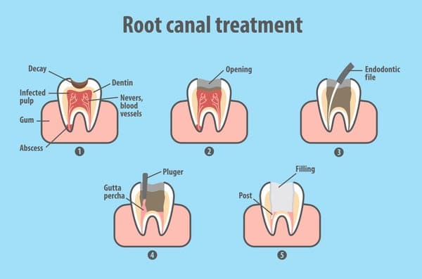 Root Canal Treatment | The Dental Studio, Singapore