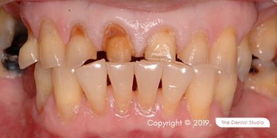 Biting Hard Food Front Teeth Example