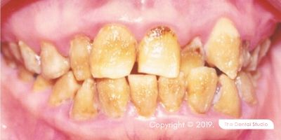 Congenital Defects example