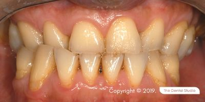 Loss Back Teeth Example