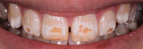 Severe teeth discolouration