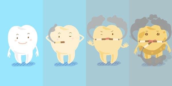 Smoking can damage your teeth
