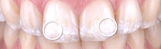 White teeth discolouration