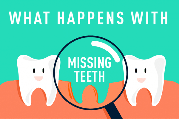 missing teeth replacement