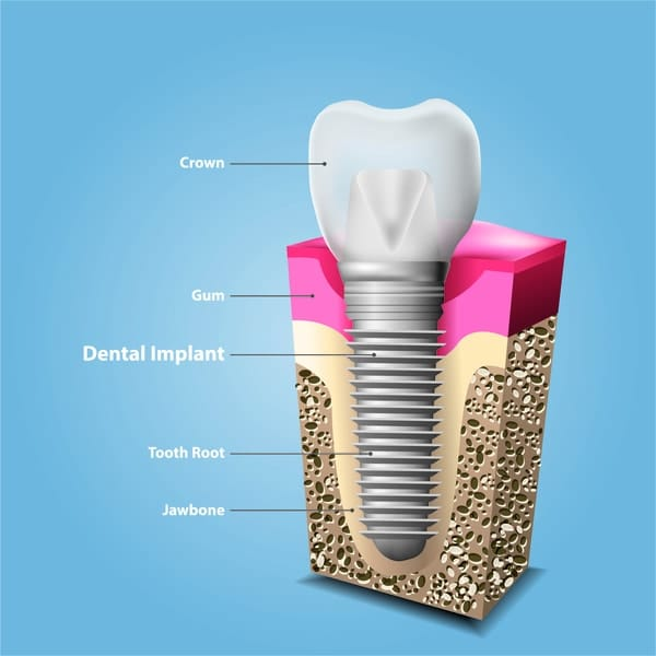 The Structure of Dental Implant