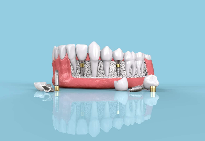 Using Durable Materials for Teeth Restoration Treatment - The Dental Studio