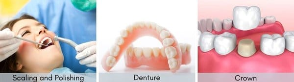 general dental care services scaling polishing denture and crown for merdeka generation package benefits – the dental studio singapore
