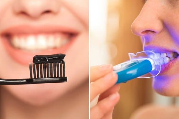 Charcoal toothpaste vs led-emitting mouth prop review for teeth whitening effect - the dental studio singapore