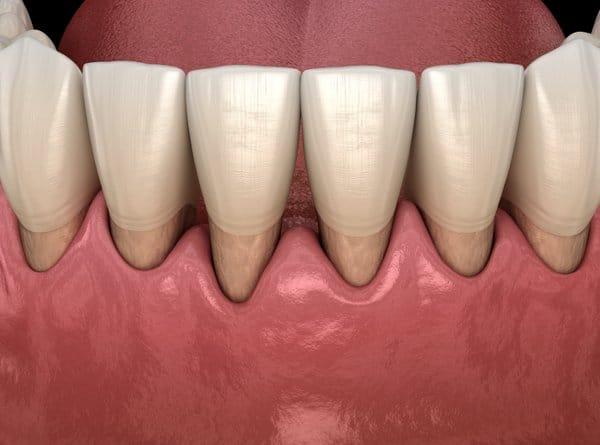 Sensitive Teeth Due to Gum Disease