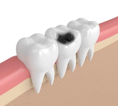 Tooth Sensitivity Due to Dental Decay