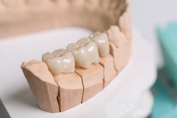 Dental Bridge Feels Natural and For Better Pronunciation