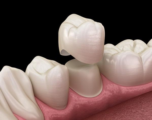 Dental Crown on Molar