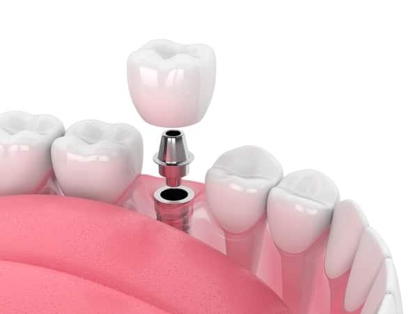 Dental Implants Procedures