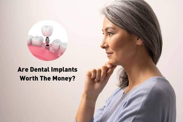 Are Dental Implants Worth the Money?