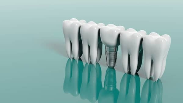 Dental Implant is a Titanium Screw That Sits in Your Bone