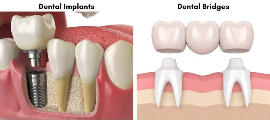 Dental Bridges and Dental Implants Comparison