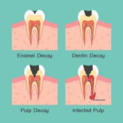 The Progress of Tooth Decay